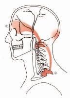 Emicrania vinci chiropratica
